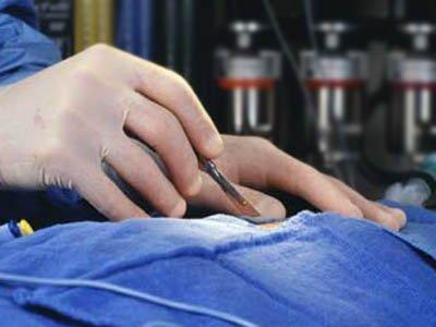 На хирурга, укравшего героин из желудка пациента во время операции, возбуждено два дела