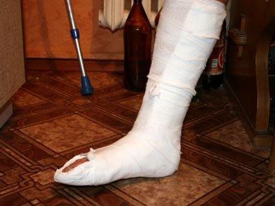 Суд оправдал руководителя развлекательного комплекса, сломавшего ногу посетителю