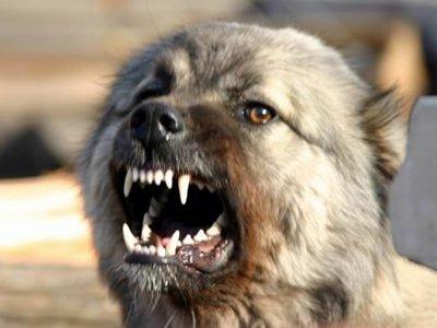 Власти заплатят родителям 4-летней девочки, покусанной бродячими собаками, 800000 руб.