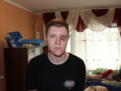 Проверяется заявление оппозиционера о его пытках в полиции электрошокером из-за приезда патриарха
