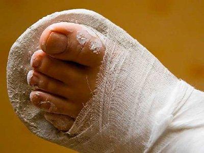 Женщина, два месяца проходившая в гипсе из-за сломанной у поликлиники ноги, отсудила 120000 руб.