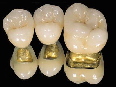 Приставы арестовали у пенсионерки-должницы золотые зубы