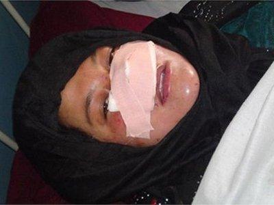 В Афганистане разыскивают мужчину, отрезавшего своей жене нос